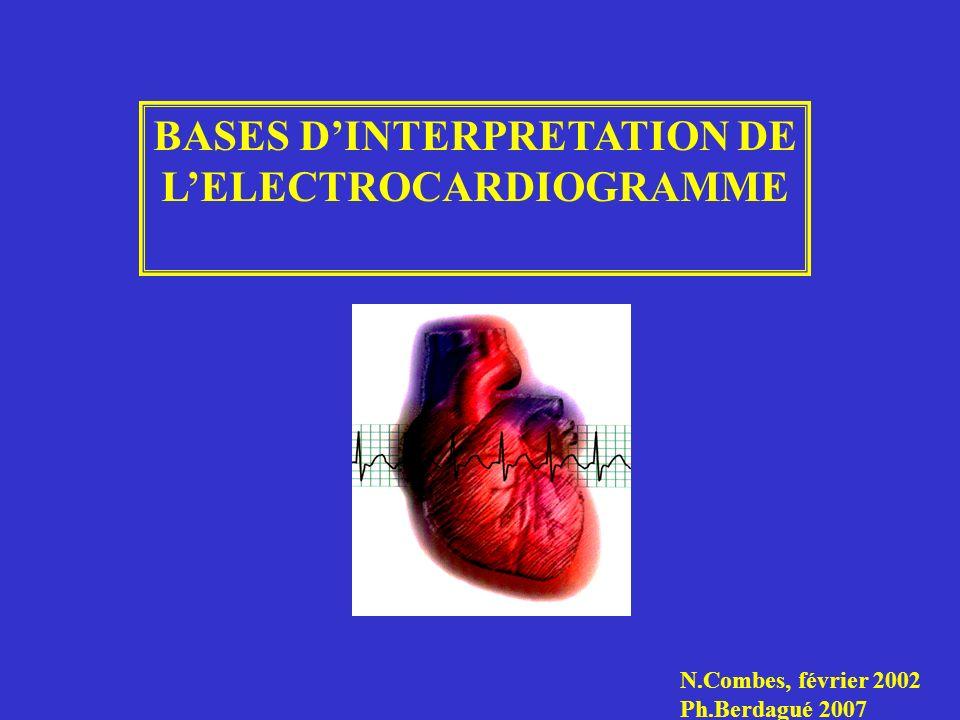 BASES D'INTERPRETATION DE L'ELECTROCARDIOGRAMME .PDF