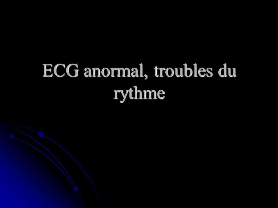 ECG anormal, troubles du rythme .PDF