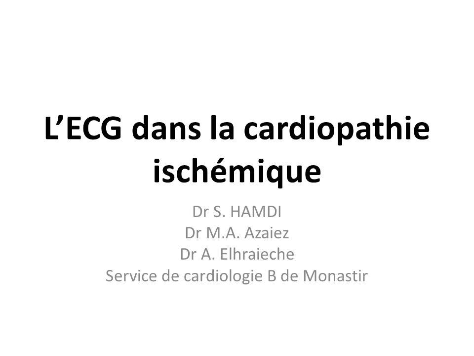 L'ECG dans la cardiopathie ischémique .PDF