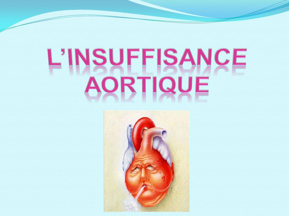 L'INSUFFISANCE AORTIQUE .PDF