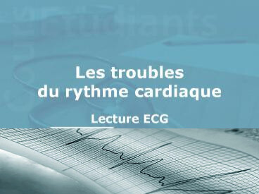Les troubles du rythme cardiaque .PDF