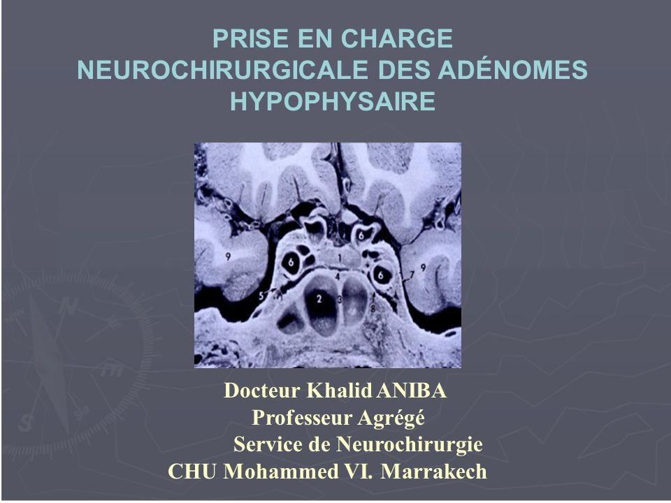 PRISE EN CHARGE NEUROCHIRURGICALE DES ADÉNOMES HYPOPHYSAIRE .PDF