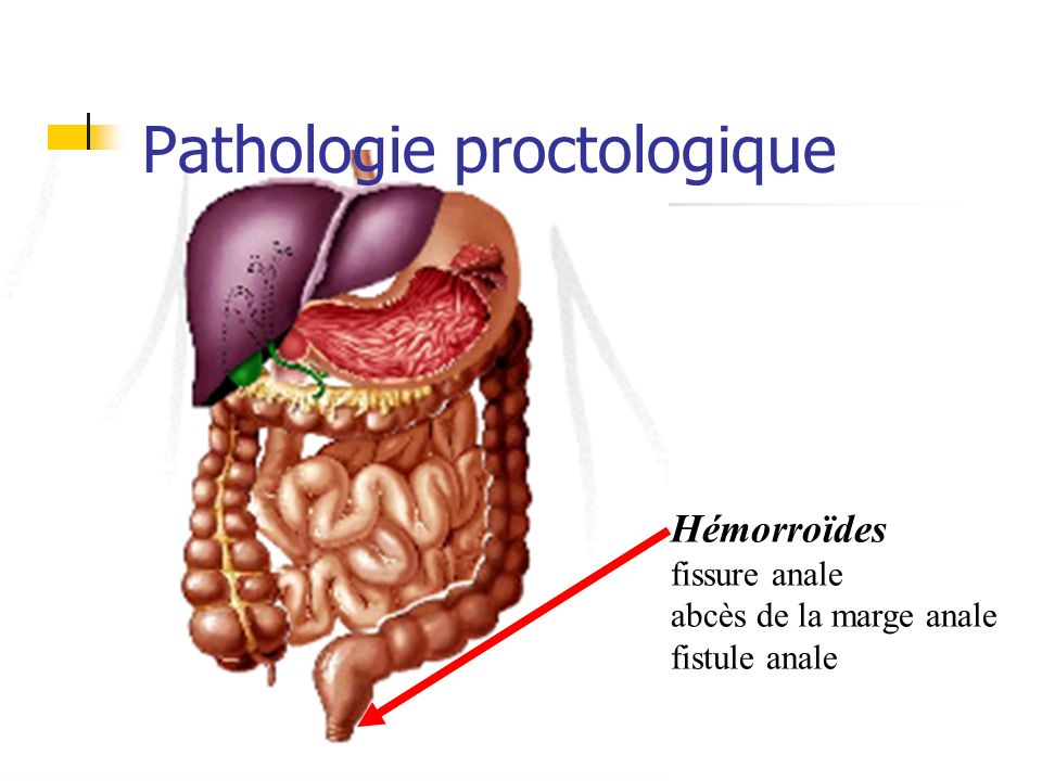 Pathologie proctologique .PDF