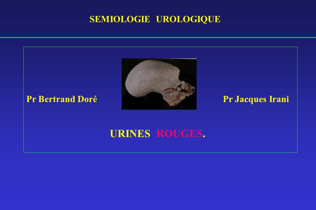 SEMIOLOGIE UROLOGIQUE .PDF