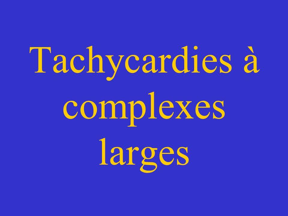 Tachycardies à complexes larges .PDF