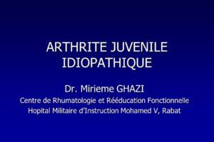 ARTHRITE JUVENILE IDIOPATHIQUE .PDF