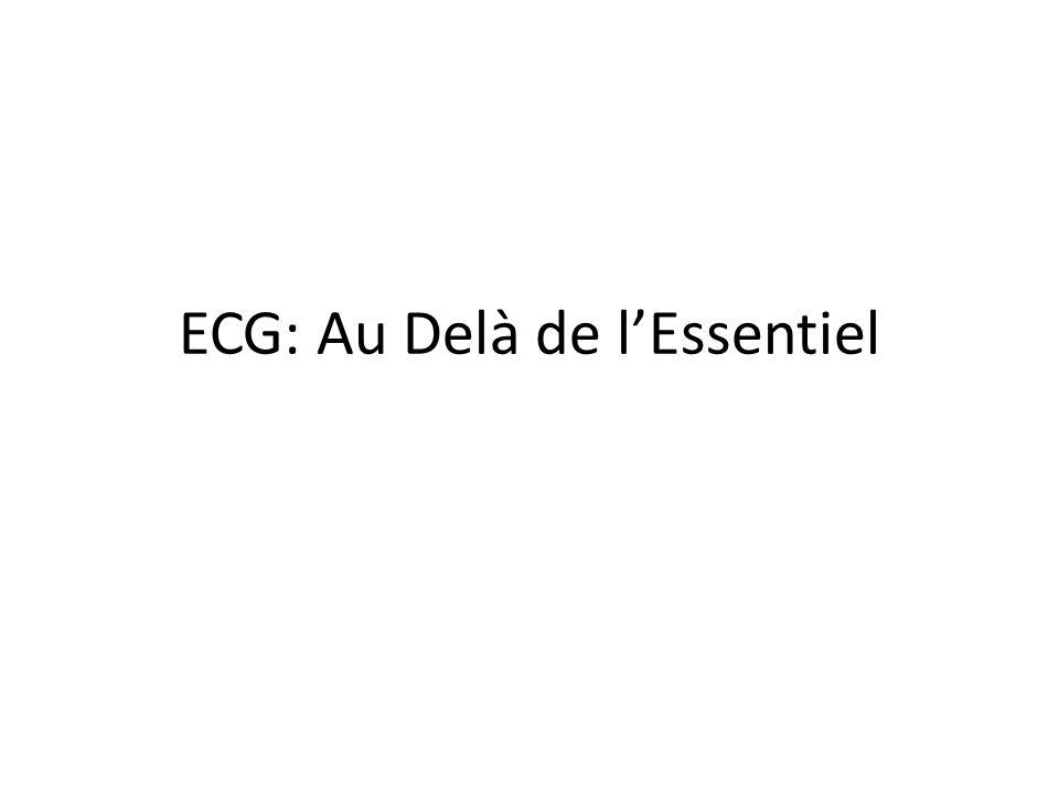 ECG: Au Delà de l'Essentiel .PDF