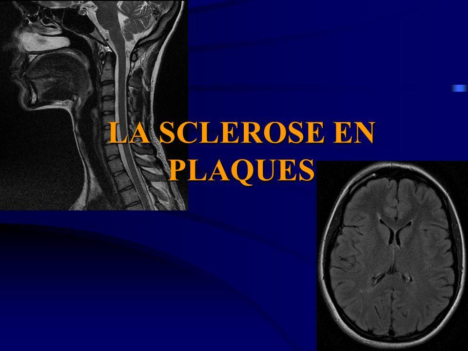 LA SCLEROSE EN PLAQUES (SEP) .PDF