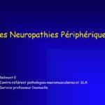 Les Neuropathies Périphériques .PDF