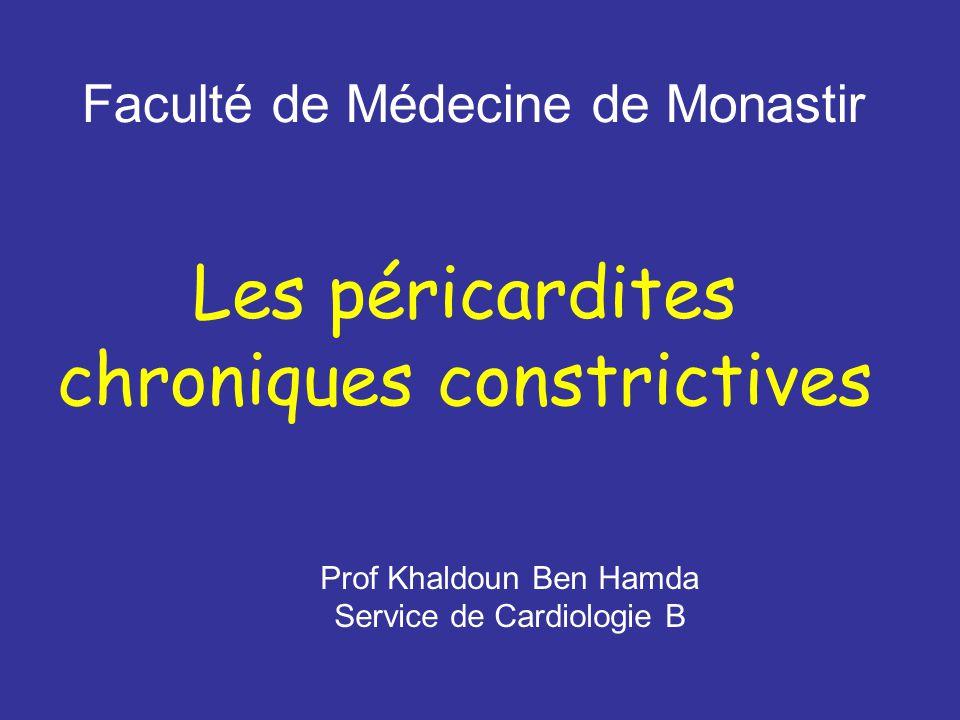 Les péricardites chroniques constrictives .PDF