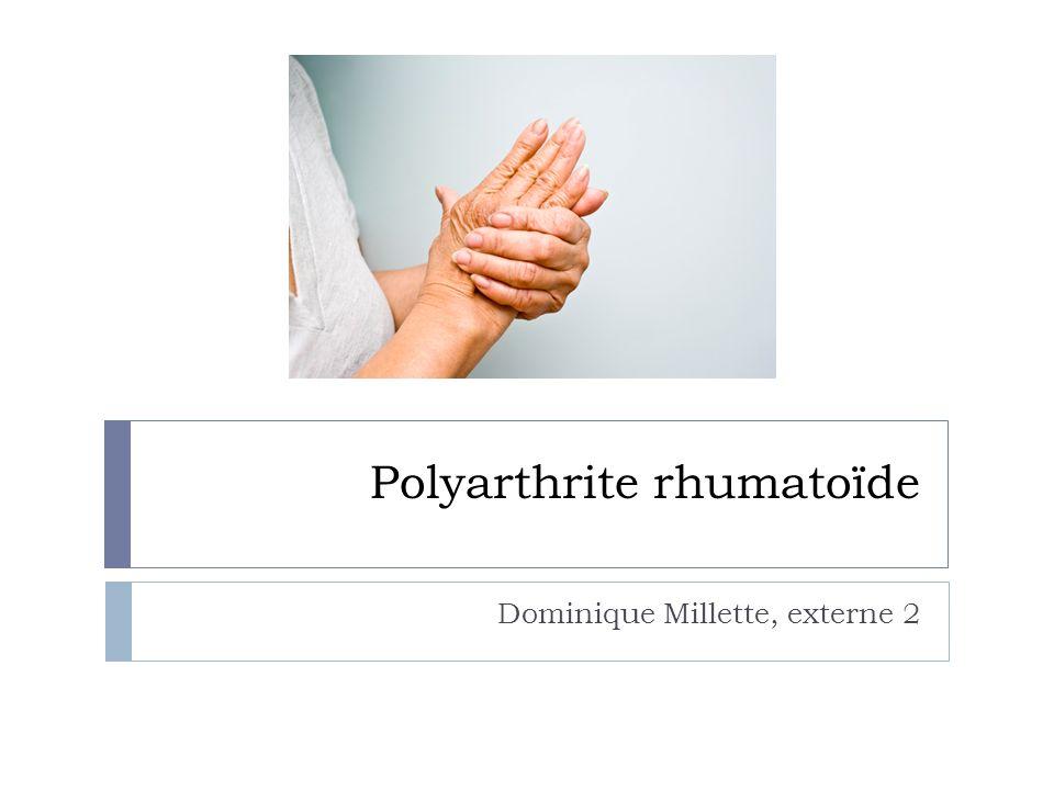 Polyarthrite rhumatoïde Dr Dominique Millette .PDF