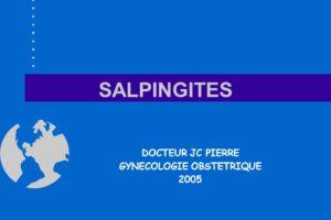 SALPINGITES .PDF