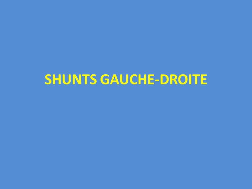 SHUNTS GAUCHE-DROITE .PDF