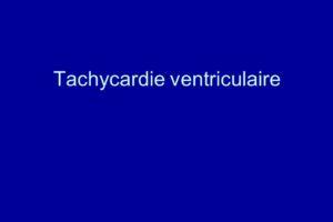 Tachycardie ventriculaire .PDF