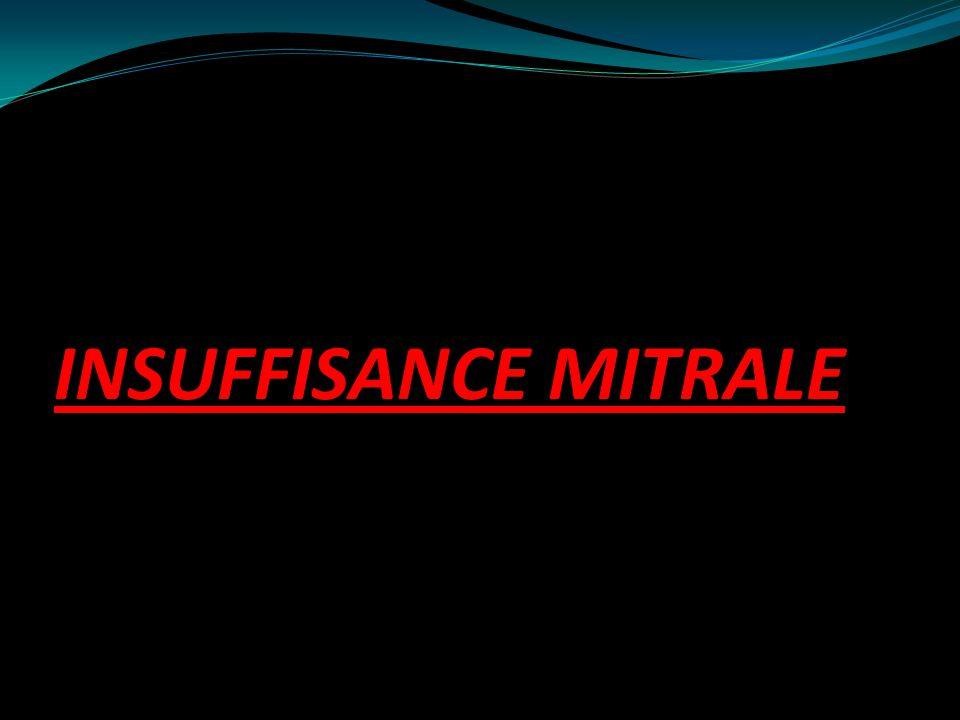 INSUFFISANCE MITRALE .PDF