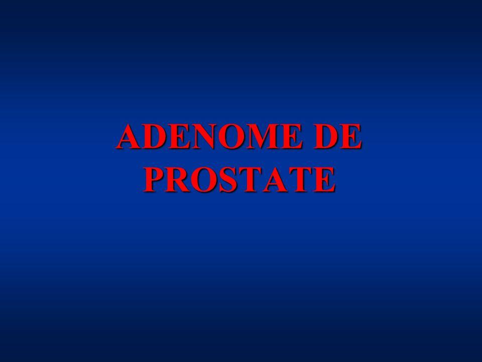 ADENOME DE PROSTATE .PDF