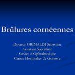Brûlures cornéennes .PDF