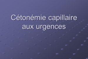 Cétonémie capillaire aux urgences .PDF
