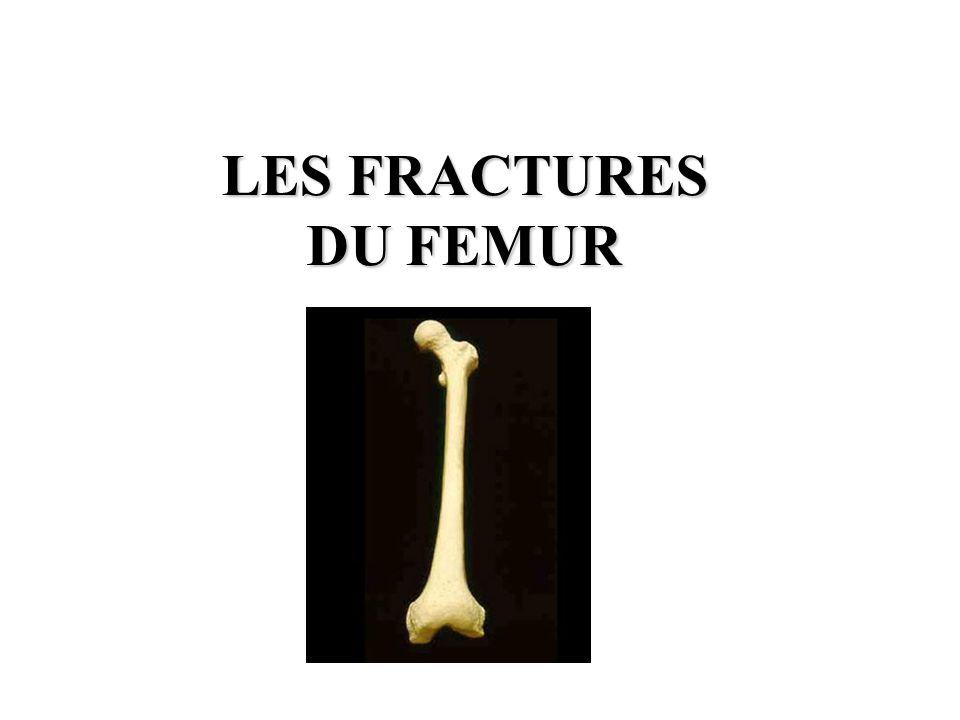LES FRACTURES DU FÉMUR .PDF