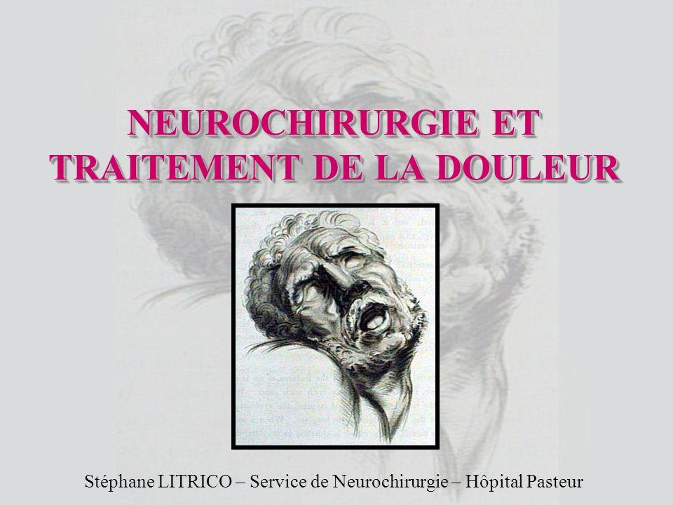 NEUROCHIRURGIE ET TRAITEMENT DE LA DOULEUR .PDF