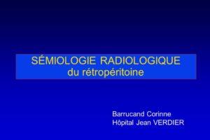 SÉMIOLOGIE RADIOLOGIQUE du rétropéritoine .PDF
