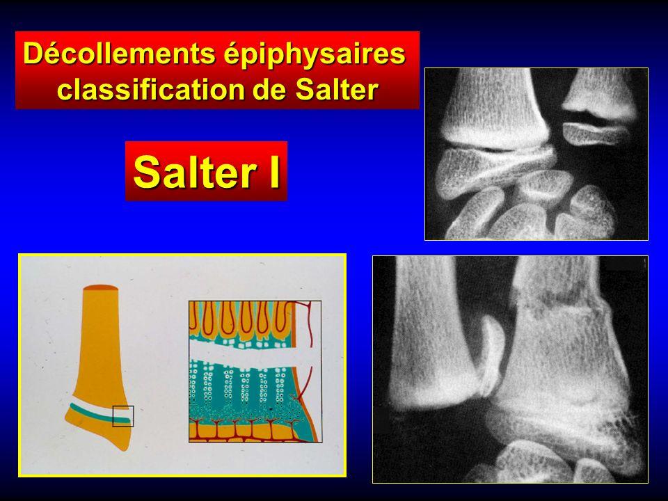 Décollements épiphysaires classification de Salter .PDF