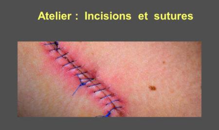 Atelier : Incisions et sutures .PDF