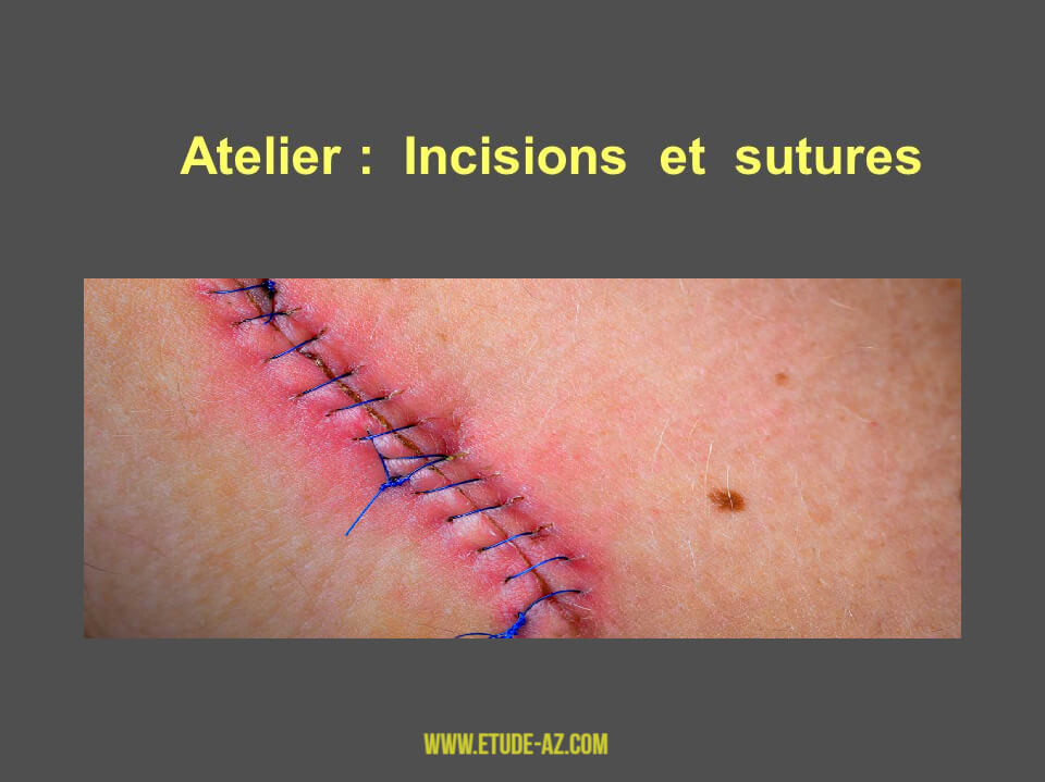 Atelier : Incisions et sutures .PDF
