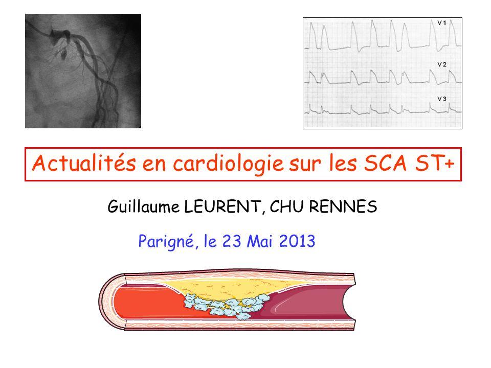 Actualités en cardiologie sur les SCA ST+ .PDF