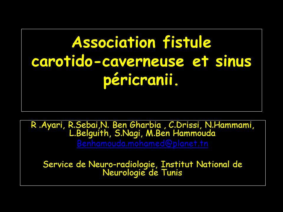Association fistule carotido-caverneuse et sinus péricranii .PDF