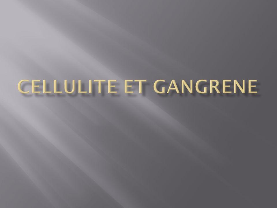 CELLULITE ET GANGRENE .PDF