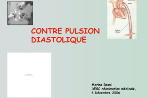 CONTRE PULSION DIASTOLIQUE .PDF