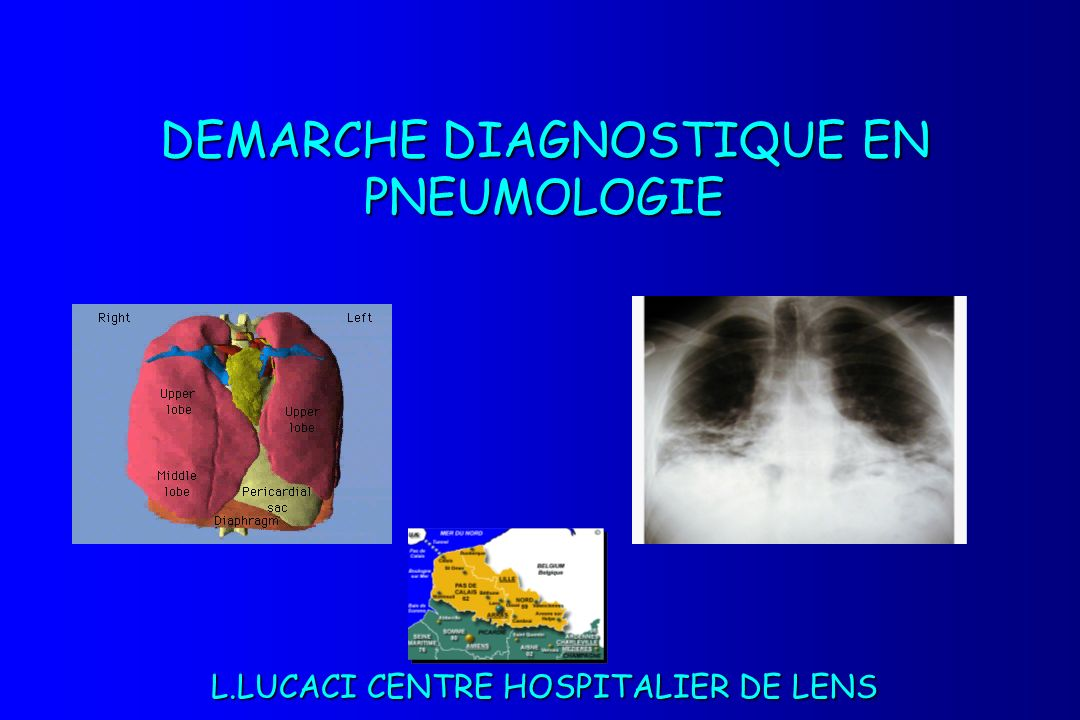 DEMARCHE DIAGNOSTIQUE EN PNEUMOLOGIE .PDF