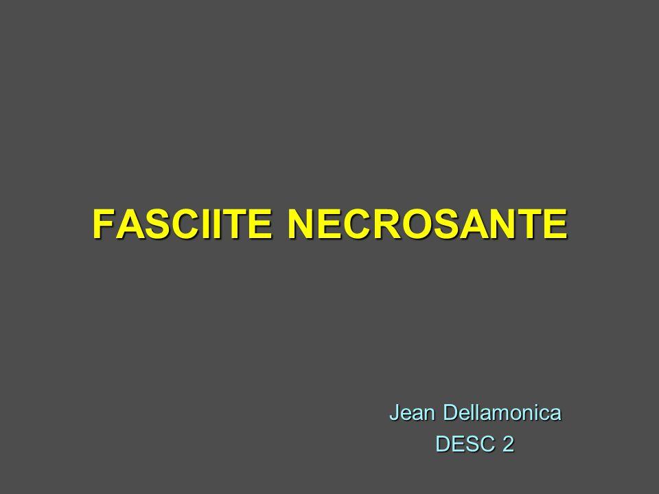 FASCIITE NECROSANTE .PDF
