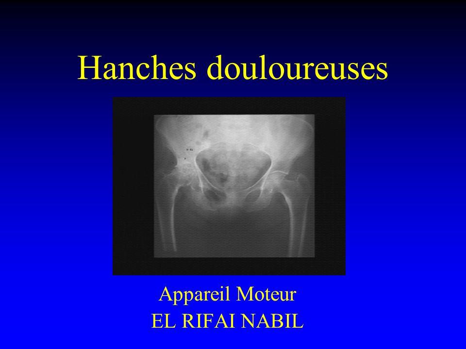 Hanches douloureuses .PDF