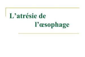 L'atrésie de l'œsophage .PDF