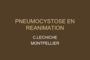PNEUMOCYSTOSE EN REANIMATION .PDF