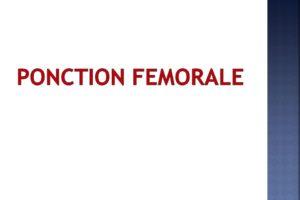 PONCTION FEMORALE .PDF