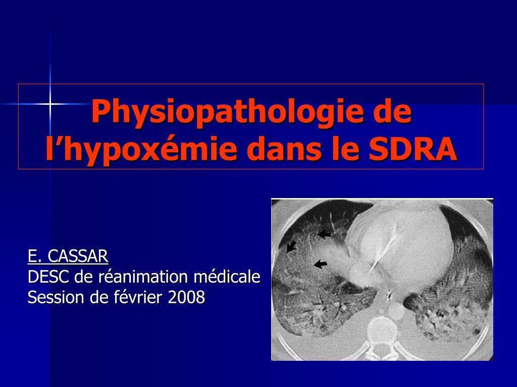 Physiopathologie de l'hypoxémie dans le SDRA .PDF