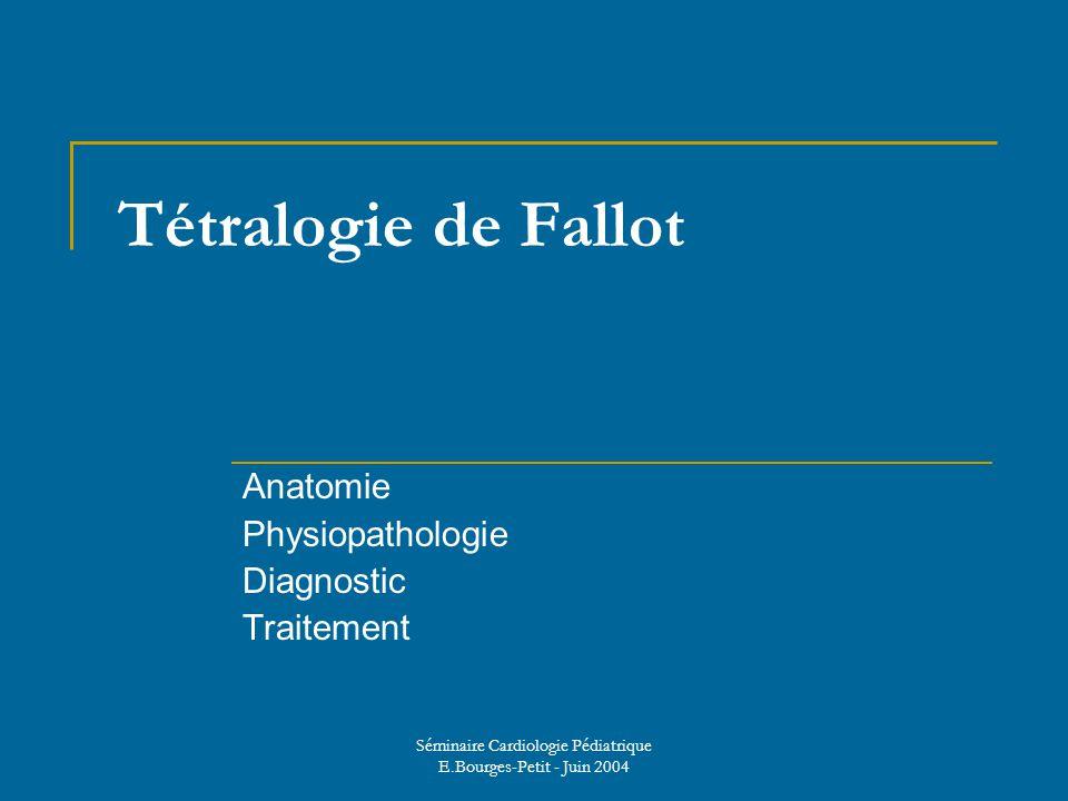 Tétralogie de Fallot .PDF