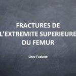 FRACTURES DE L'EXTREMITE SUPERIEURE DU FEMUR .PDF