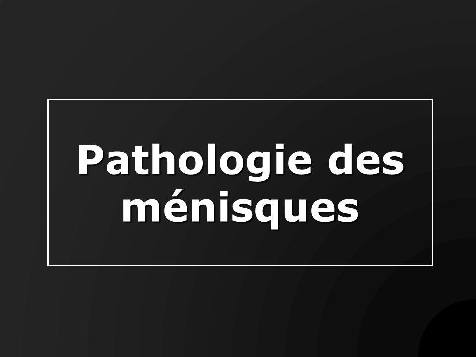 Pathologie des ménisques .PDF