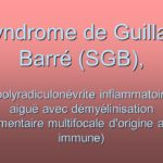 Syndrome de Guillain Barré (SGB) .PDF