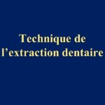 Technique de l'extraction dentaire .PDF