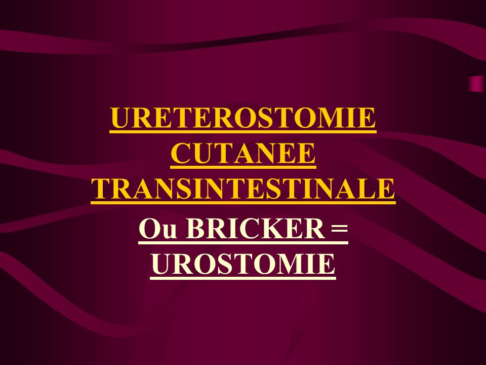 URETEROSTOMIE CUTANEE TRANSINTESTINALE .PDF