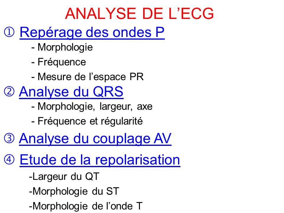 ANALYSE DE L'ECG .PDF