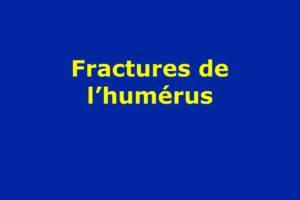 Fractures de l'humérus .PDF