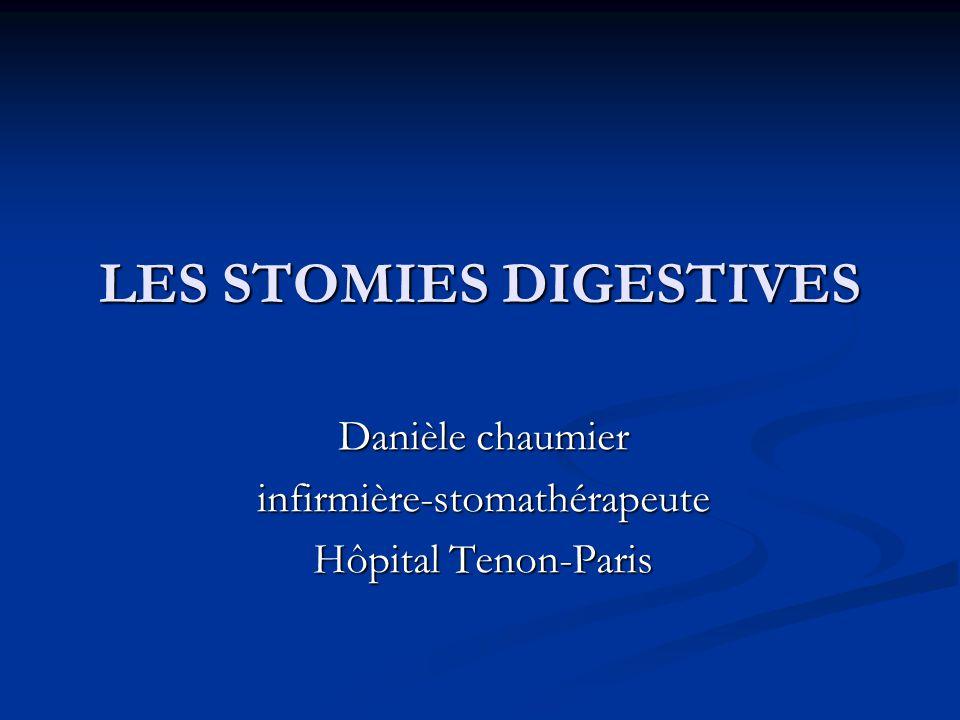 LES STOMIES DIGESTIVES .PDF