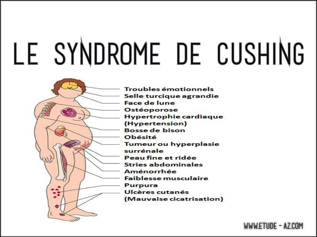 Le syndrome de Cushing .PDF