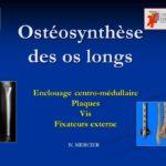 Ostéosynthèse des os longs .PDF